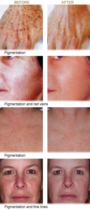 Intense Pulsed Light - Miami Beach Skincenter Dermatologists Miami